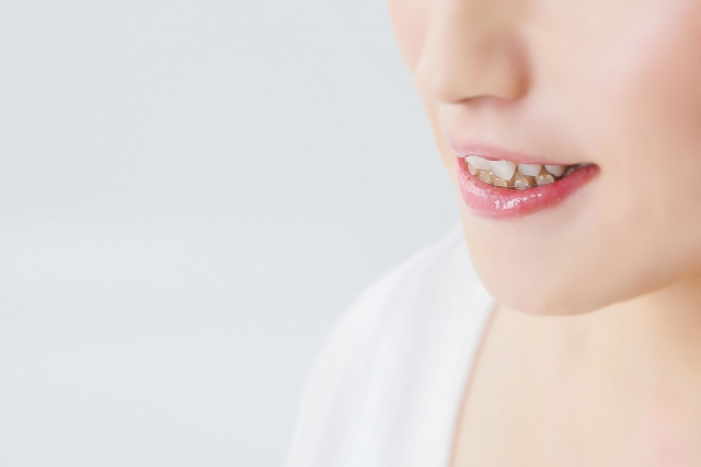 こてら歯科 矯正歯科・無料歯並び相談